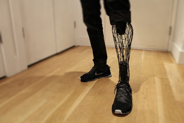 Google allots $20 million grant for 3D-printed prosthetics and other aid technology